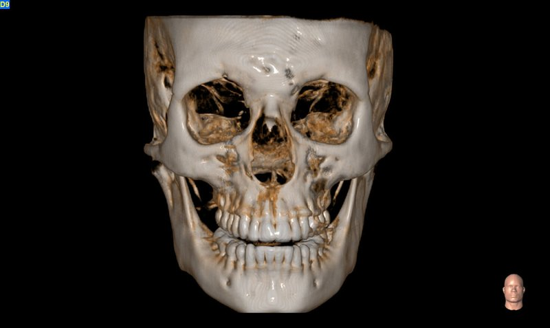 Maxillofacial acquisition and Airways evaluation (MXF)