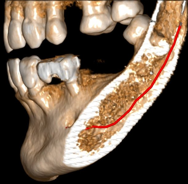 Evaluation of an old Endodontic treatment